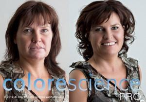 vitiligo voor en na met logo CSPRO